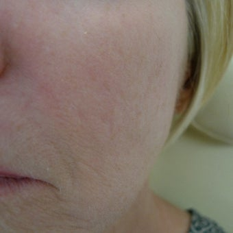 Acne scars treated with subcision and filler- no laser! after 2380472