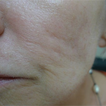 Acne scars treated with subcision and filler- no laser! before 2380472
