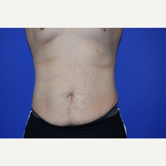 25 Year Old Male Full Abdomnioplasty before 3418632