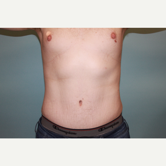 25 Year Old Male Full Abdomnioplasty after 3418632