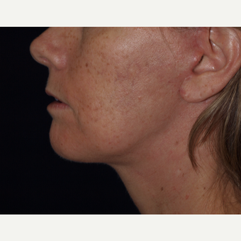 45-54 year old woman treated with Facelift after 3194339