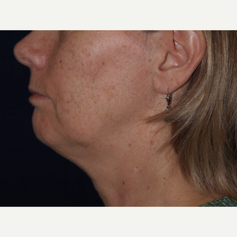 45-54 year old woman treated with Facelift before 3194339