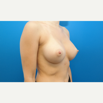 25-34 year old woman treated with Breast Augmentation after 3099044