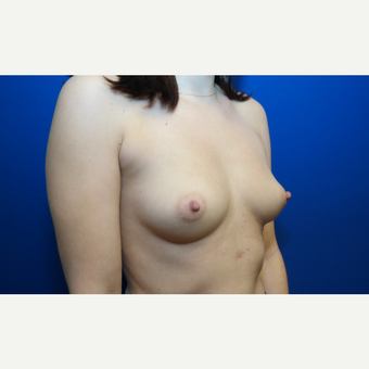 25-34 year old woman treated with Breast Augmentation before 3099044