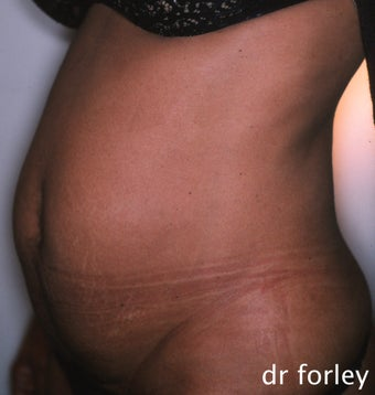 36 year old female 4 months following a tummy tuck before 625034