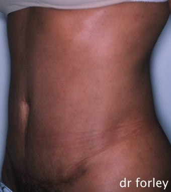 36 year old female 4 months following a tummy tuck after 625034