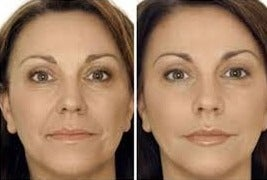 35-44 year old woman treated with Restylane before 1775132
