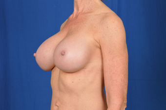 Breast Revision  1430442