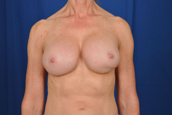 Breast Revision  before 1430442