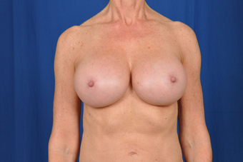 Breast Revision  after 1430442