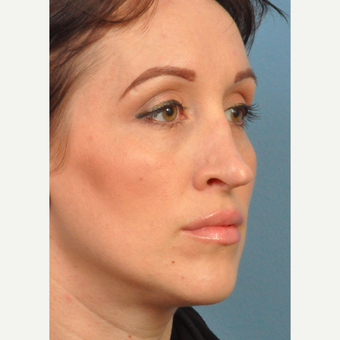 25-34 year old woman treated with Rhinoplasty before 3658021