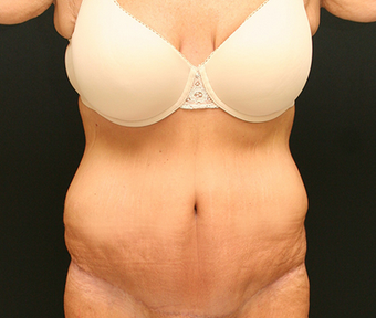 Patient who lost over 100 pounds got a trunk lift with liposuction after 1381859