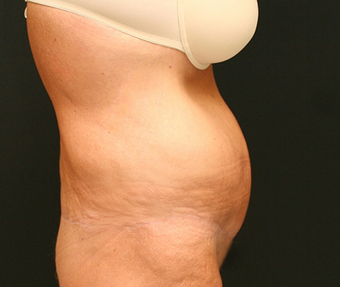 Patient who lost over 100 pounds got a trunk lift with liposuction 1381859