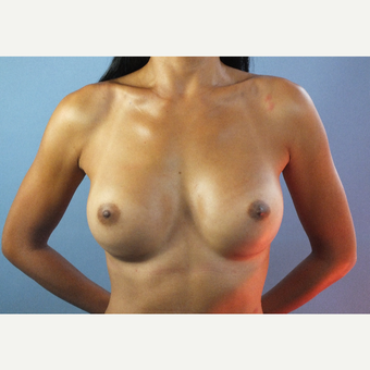 25-34 year old woman treated with Breast Augmentation after 3123613