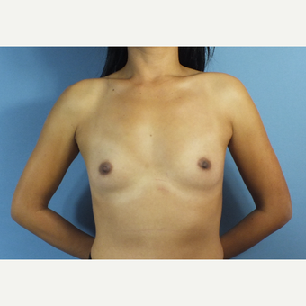 25-34 year old woman treated with Breast Augmentation before 3123613