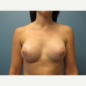 18-24 year old woman treated with Breast Augmentation after 3724475