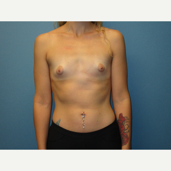 18-24 year old woman treated with Breast Augmentation before 3724475