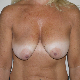 45-54 year old woman treated with Breast Implant Revision before 3132257