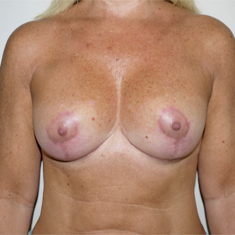 45-54 year old woman treated with Breast Implant Revision after 3132257