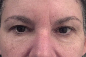 53 yr old female treated with dermal filler below eyes after 1328563
