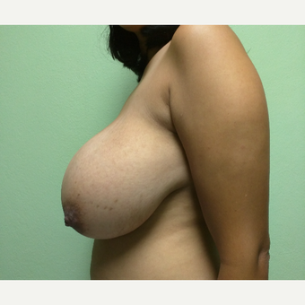 29 year old woman treated with Breast Reduction before 3260255