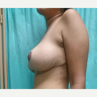 29 year old woman treated with Breast Reduction after 3260255