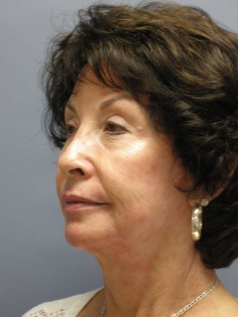 LiteLift™, Blepharoplasty, Platysmaplasty on 67-year-old Woman 932801