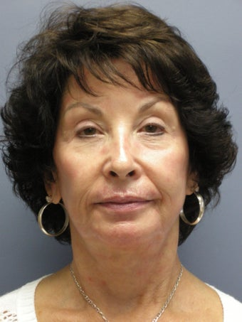 LiteLift™, Blepharoplasty, Platysmaplasty on 67-year-old Woman before 932801