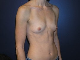 Breast Augmentation 1330516