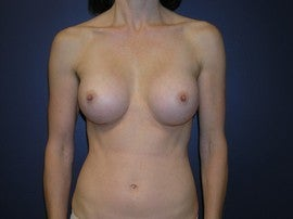 Breast Augmentation after 1330516