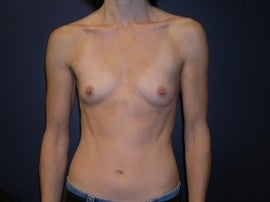 Breast Augmentation before 1330516