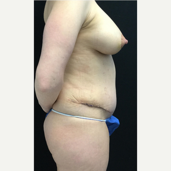 35-44 year old woman treated with Breast Lift with Implants after 3219393