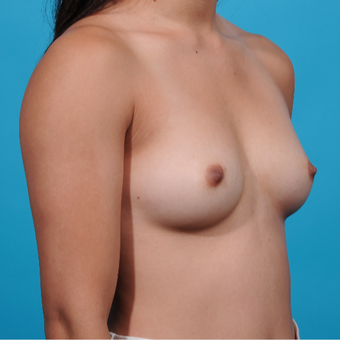 18-24 year old woman treated with Breast Augmentation before 3789290