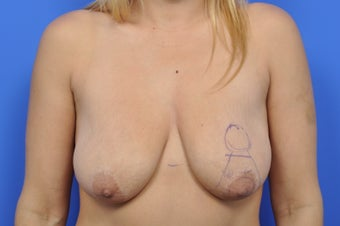 36 year old female desiring breast lift but no implants before 1307214