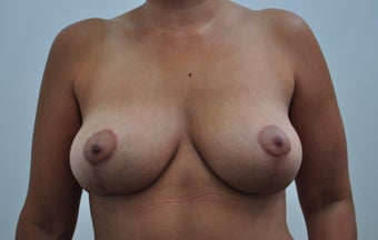 36 year old female desiring breast lift but no implants after 1307214
