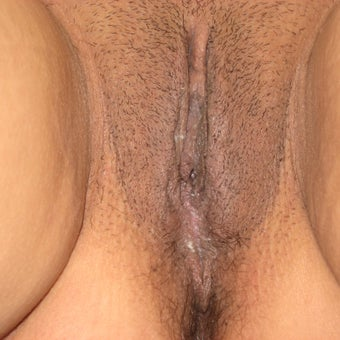 46 year old woman treated with Vaginal Rejuvenation/Vaginoplasty after 1982873
