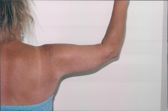 Arm lift - Female  after 216940