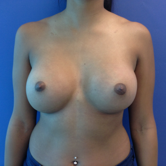 18-24 year old woman treated with Breast Augmentation after 3766014