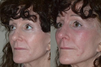 52 year old with previous facelift, interested in enhancement of the cheeks. before 1270756