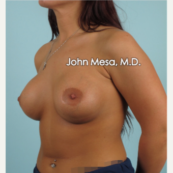 18-24 year old woman treated with Sientra Breast Implants after 3266867