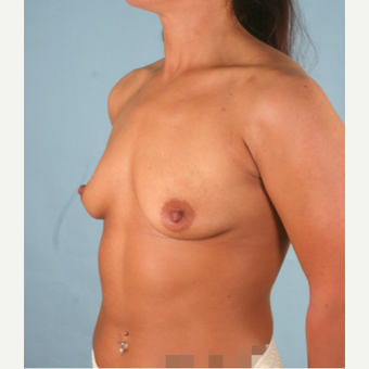 18-24 year old woman treated with Sientra Breast Implants before 3266867