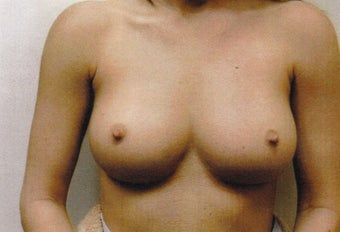 34 Year Old Female - Sientra Breast Augmentation before 1489280