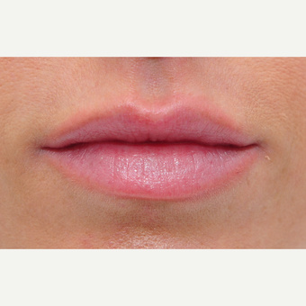 Plump lips with filler before 3140314