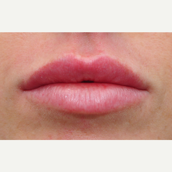 Plump lips with filler after 3140314