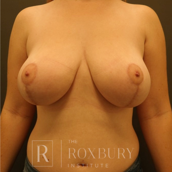 45-54 year old woman treated with Breast Lift after 3844265