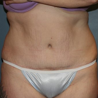 Laser Liposuction and Tummy Tuck after 3372009