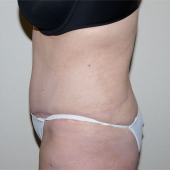 45-54 year old woman treated with Tummy Tuck after 3289995