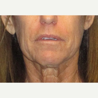 65-74 year old woman treated with Fat Transfer and face/neck lift before 1710954