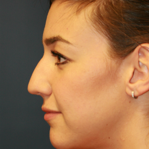 18-24 year old woman treated with Rhinoplasty before 3559779
