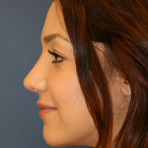 18-24 year old woman treated with Rhinoplasty after 3559779